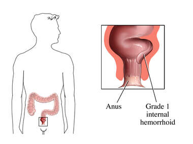 Grade 1 Hemorrhoid