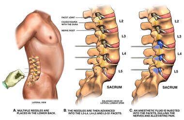 Lumbar Facet Joint Nerve Block