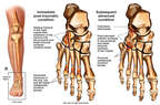 Right Foot Fractures with Subsequent Arthritis