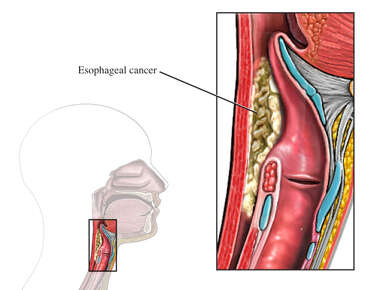 Esophageal Cancer