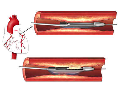 Coronary Artery: Atherectomy Procedure