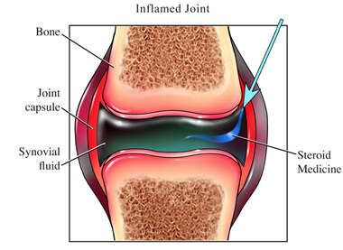 Steroid Injection in an Inflamed Joint