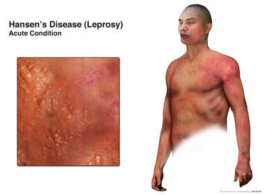 Hansen's Disease: Leprosy Acute Condition