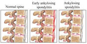 Stages of Ankylosing Spondylitis