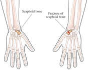 Complete Fracture of the Scaphoid Bone