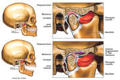 Anterior Displacement of the Right Temporomandibular Joint (TMJ)