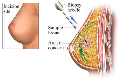 Needle Breast Biopsy