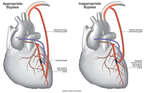 Appropriate vs. Inappropriate Coronary Artery Bypass