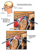 Arthroscopic Repair of Temporomandibular Joint (TMJ) Dysfunction