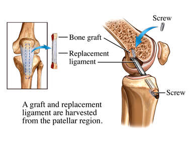 ACL Replacement Surgery