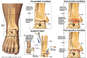 Progression of Ankle Condition: Arthritis, Surgical Fusion, Joint Deterioration and Graft Placement