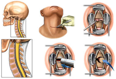 Cloward Anterior Cervical Discectomy and Fusion
