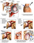 Right Shoulder Injuries with Surgical Repairs