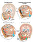 Progression of Meningitis Following Cranial CSF Leak