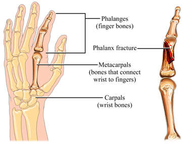 Phalanx Fracture of the Hand: Left Index Finger