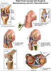 Right Knee Injuries with Surgical Meniscectomy and ACL Reconstruction