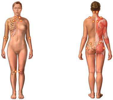 Fibromyalgia Syndrome (Female)