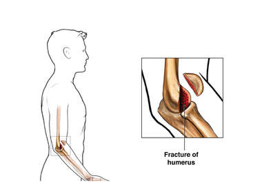 Elbow Fracture - Lower Humerus, Type 1: Male