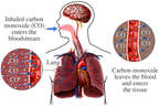 Lungs - Carbon Monoxide Gas Poisoning