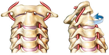 Rotational Injury of the Vertebral Artery