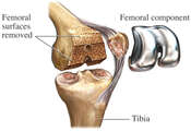 Total Knee Joint Replacement Surgery