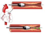 Removal of Plaque in Coronary Artery