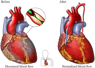 Coronary Artery Disease - Heart Bypass Surgery