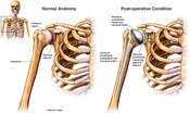 Right Shoulder Joint Replacement