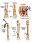 Post-accident Left Ankle Fractures with Surgical Fixation