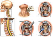 Classic Smith-Robinson Anterior Cervical Discectomy and Fusion
