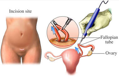 Open Tubal Ligation