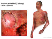 Hansen's Disease: Leprosy Tertiary Condition