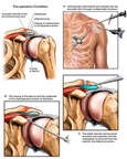 Left-Shoulder Injuries with Arthroscopic Repairs