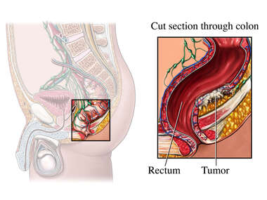 Rectosigmoid Colon with Colon Cancer