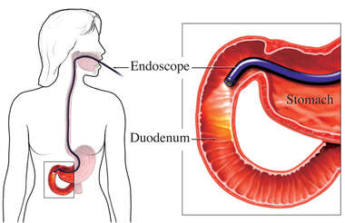Upper GI Endoscopy