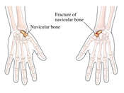 Complete Fracture of the Navicular Bone of the Hand