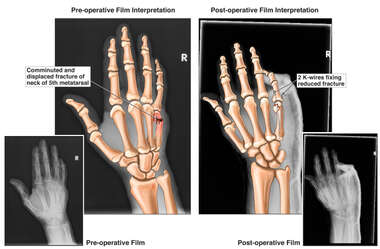 Right Hand Fracture with Percutaneous Fixation