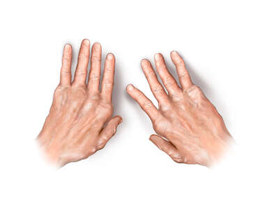 Rheumatoid Arthritis Seen in the Hands
