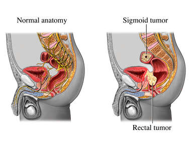 Rectal and Sigmoid Tumors