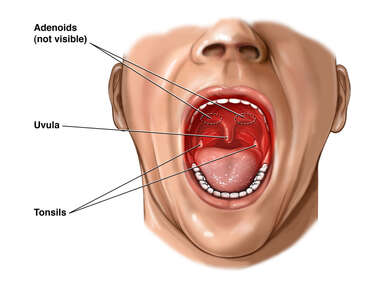 Inflammation of the Throat