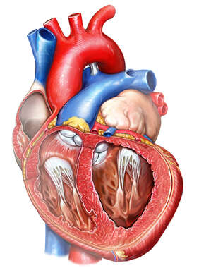 Enlarged Left Ventricle