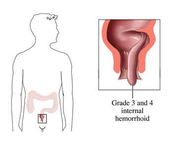 Grade 3 and 4 Hemorrhoids