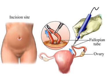 Tubal Ligation Surgery