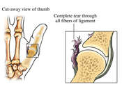 Severe Sprain of Ulnar Collateral Ligament