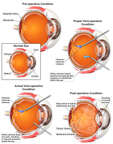 Intra-operative Errors Leading to Additional Eye Injuries