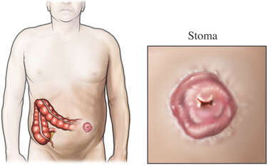 Colostomy-Stoma