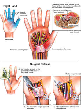 Carpal Tunnel Syndrome and Surgical Release: Right Hand