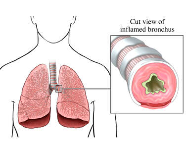 Inflamed Bronchus in the Lung