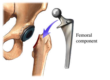 Total Hip Replacement-Femoral Component