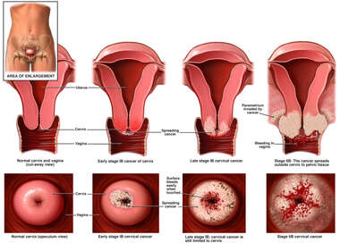 Progression of Cervical Cancer
